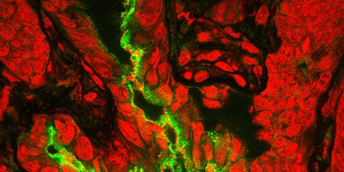 pathogen and microbes
